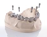 okklusal verschraubte Implantatbrücke